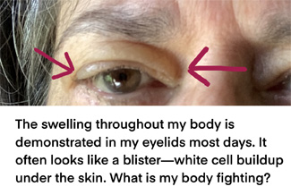 The swelling throughout my body is demonstrated in my eyelids most days. It often looks like a blister—white cell buildup under the skin. What is my body fighting?